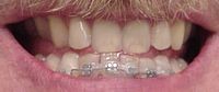 Galen's teeth with braces